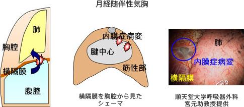 子宮 内 膜 症 治療