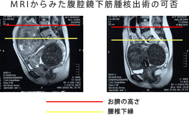 筋腫 子宮 産婦人科の病気:子宮筋腫・子宮内膜症・子宮腺筋症